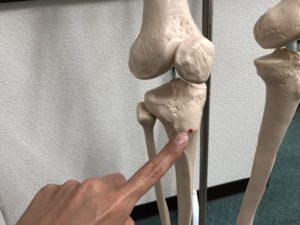脛骨粗面を示す模型写真