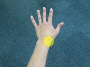 手首の腱鞘炎で痛みが出る部位の写真