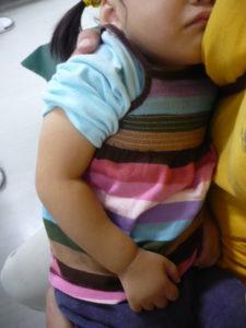 右肘内障で痛がる女児の写真