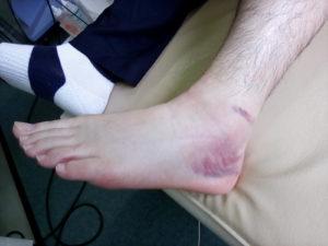 足関節靭帯損傷GradeⅢの外見写真(外側からの外見)