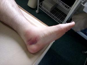 足関節靭帯損傷GradeⅢの外見写真(内側からの外見)