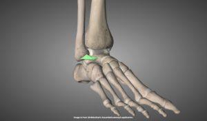 前距腓靭帯を示す画像