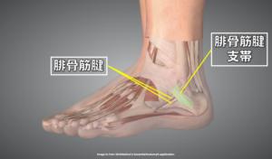腓骨筋腱支帯の部位を示す画像