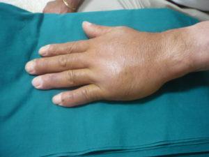 手背部の腫脹を示す写真