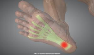 足底腱膜炎が起こる部位を示す画像
