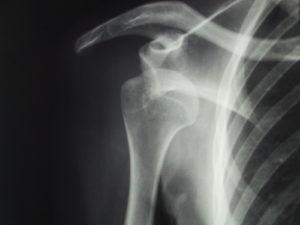 肩関節脱臼のレントゲン写真