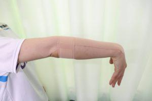 テニス肘に対するテーピングの貼り方を示す写真③:ホワイトテーピングを覆うように前腕を一周