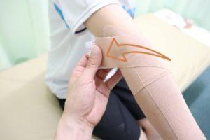 テニス肘に対するテーピングの貼り方を示す写真⑤:肘の後方で終わる