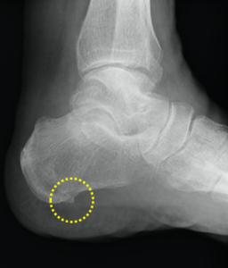 踵骨棘を示すレントゲン写真
