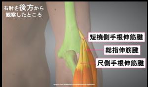 後方から見た前腕伸筋群の画像