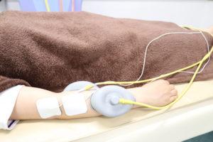 テニス肘(上腕骨外側上顆炎)に対して電気療法を行なっている写真