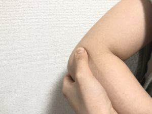 テニス肘の圧痛点を示す写真