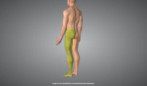 坐骨神経痛が現れる部位を示す人体画像