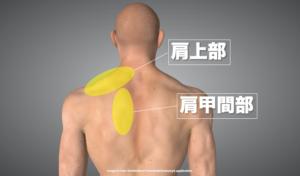 一般的な肩こりが現れる部位を示した画像
