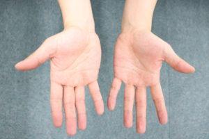 施術者の手の写真