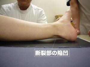 アキレス腱断裂部の陥凹を示す外見写真