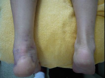 左アキレス腱断裂の外見写真