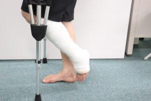 アキレス腱断裂に対する底屈位でのギプス固定