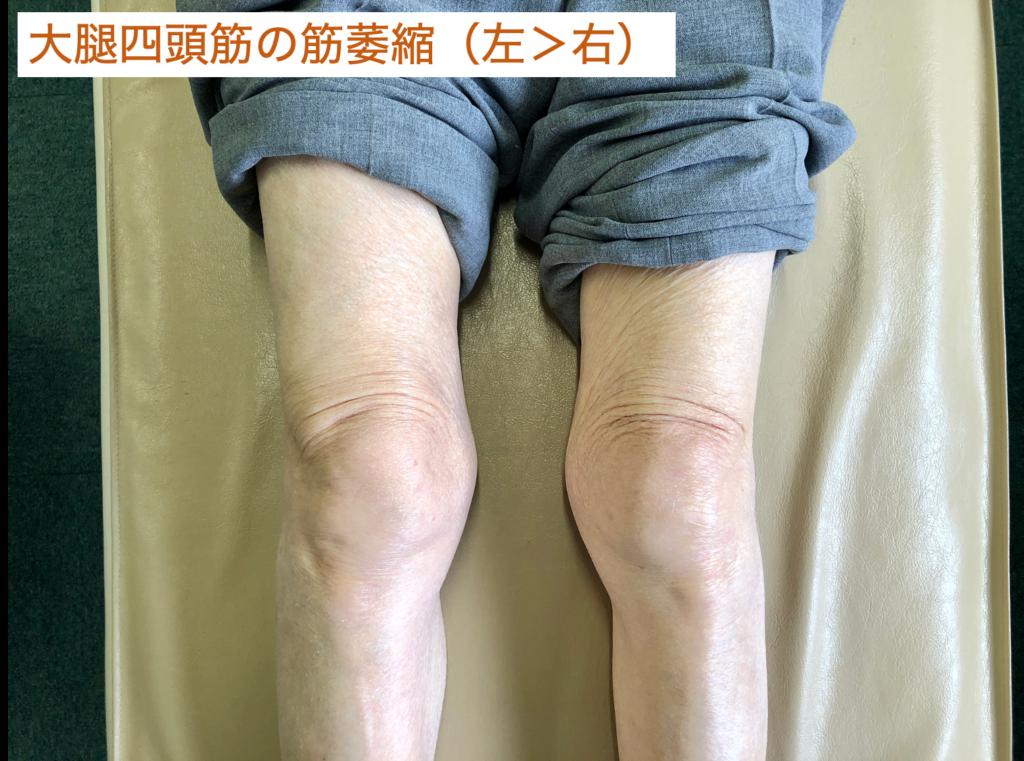 大腿四頭筋の筋萎縮