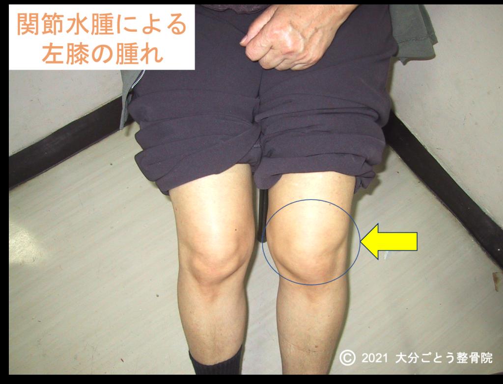 関節水腫による左膝の腫れを示す写真画像