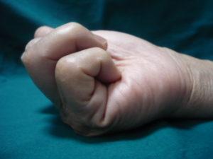 ばね指の屈曲制限
