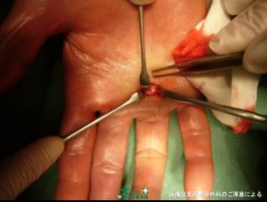 ばね指の手術をしている画像写真