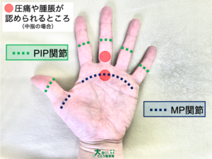 ばね指の圧痛点、腫脹が生じる部位を示す画像写真