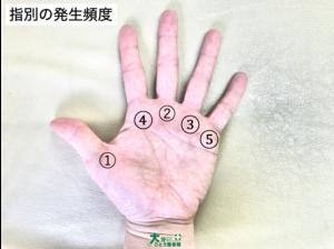 ばね指の指別発生頻度を示す写真画像