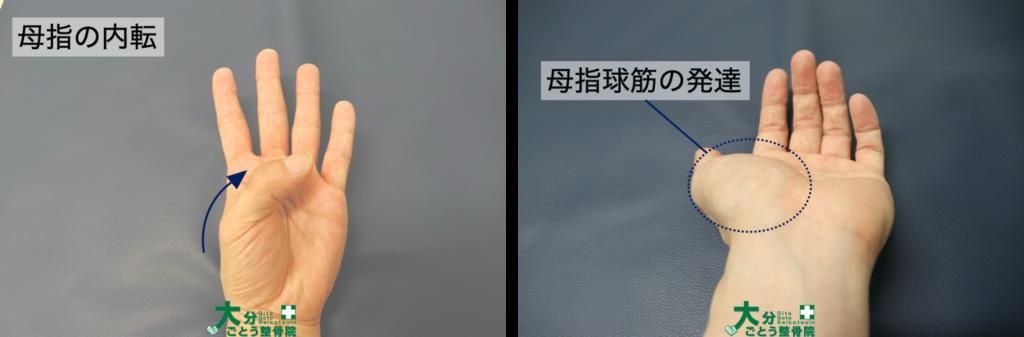 母指の内転と母指球筋の発達を示す画像写真