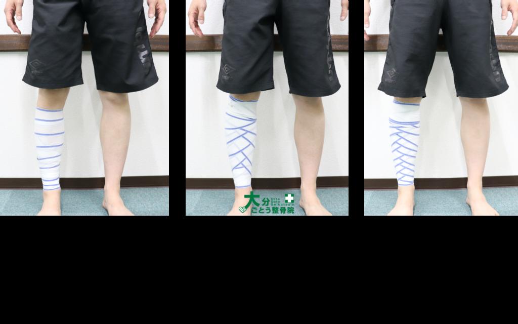 包帯による3種類(螺旋帯・麦穂帯・折転帯)の下腿圧迫・固定法を示す写真画像