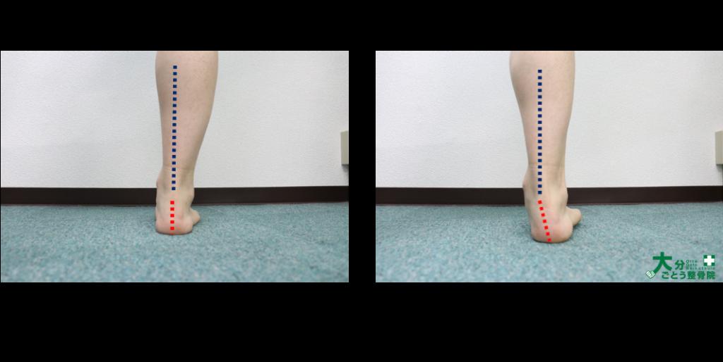 後方から見た時の足部の回内を示す写真画像