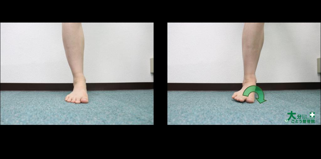 前方から見た時の足部の回内を示す写真画像