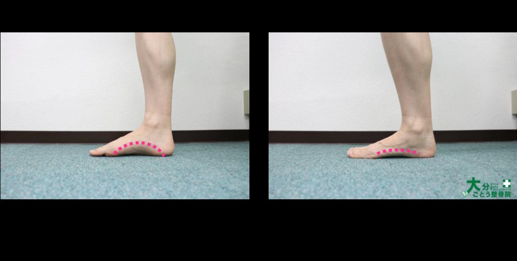 内側から見た時の足部の回内を示す写真画像