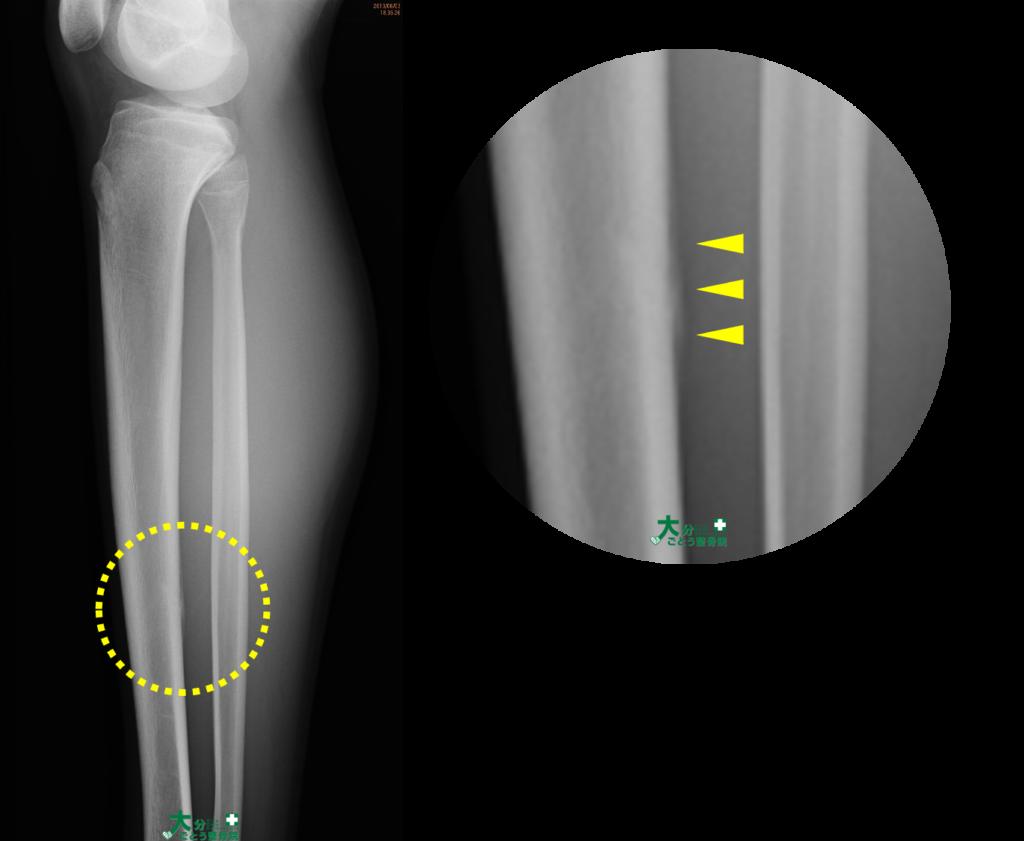 脛骨の疲労骨折を示すレントゲン画像