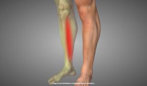 シンスプリントの疼痛部位を示す画像